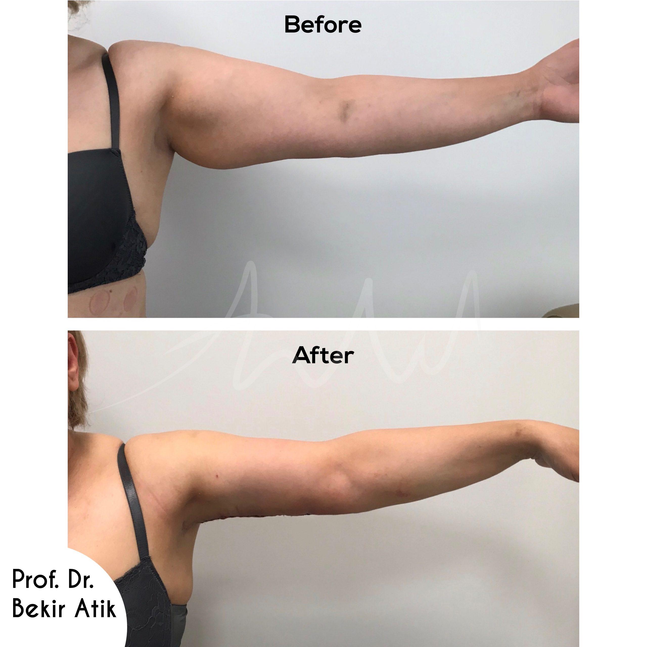 arm-lift-1