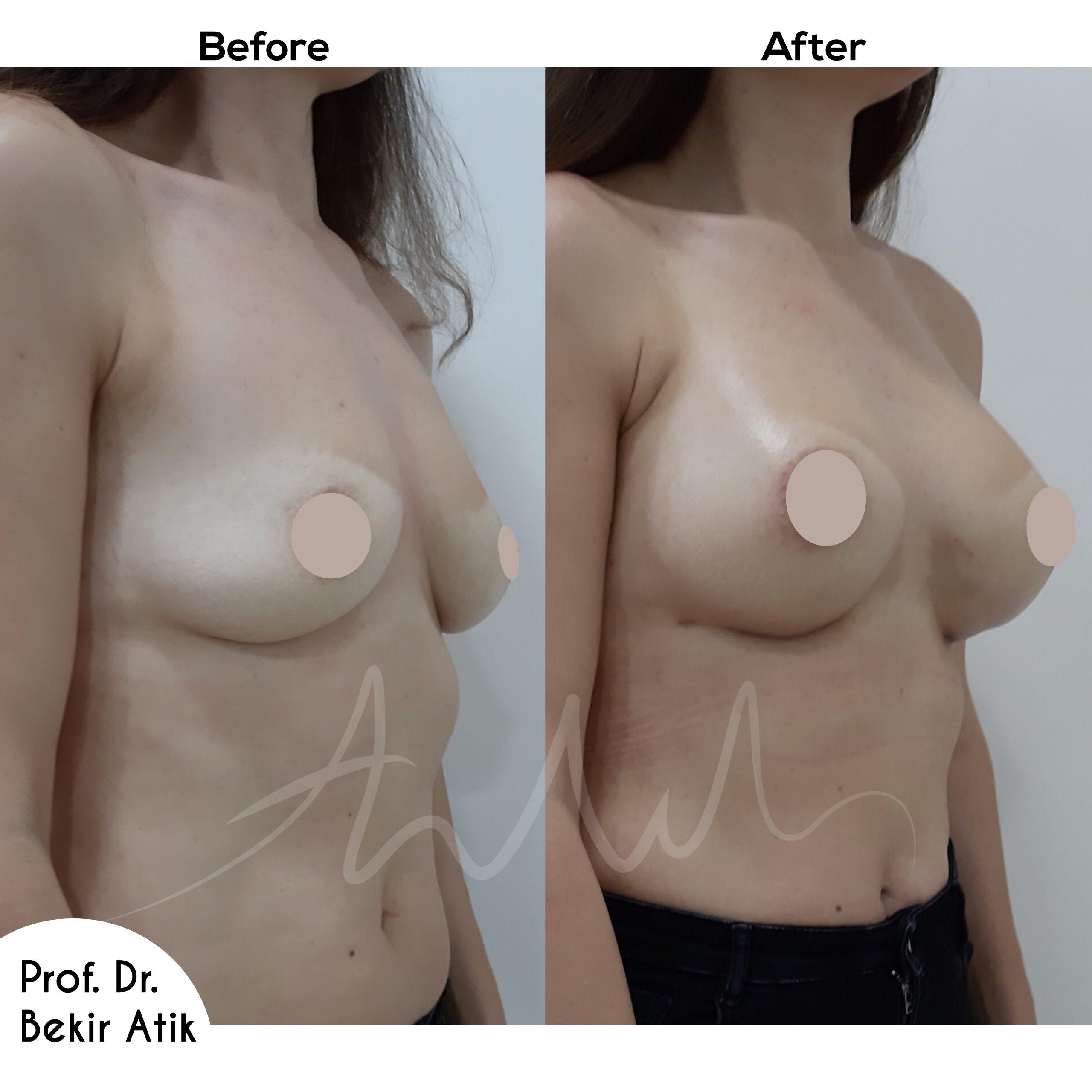 breast-enlargement-1