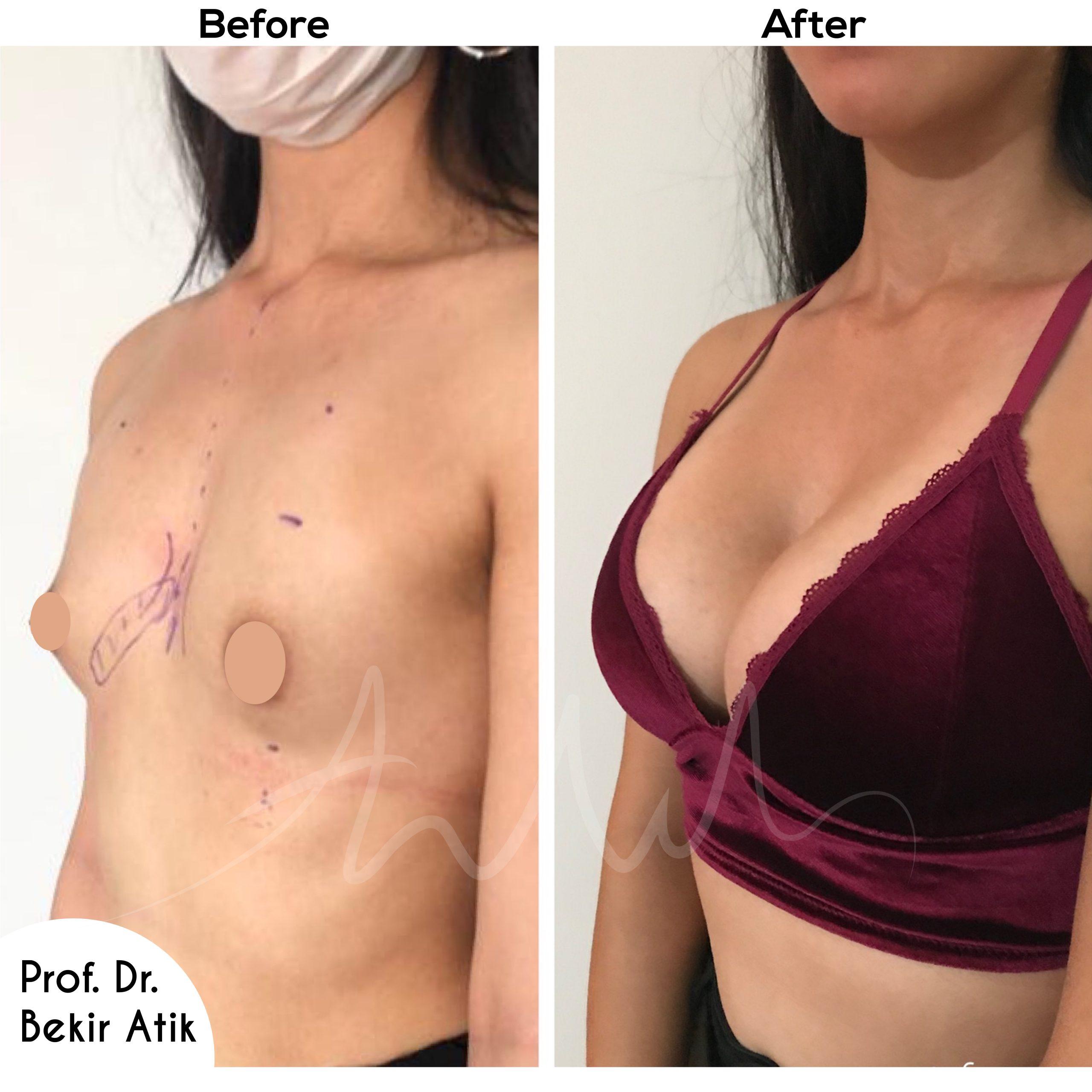 breast-enlargement-2
