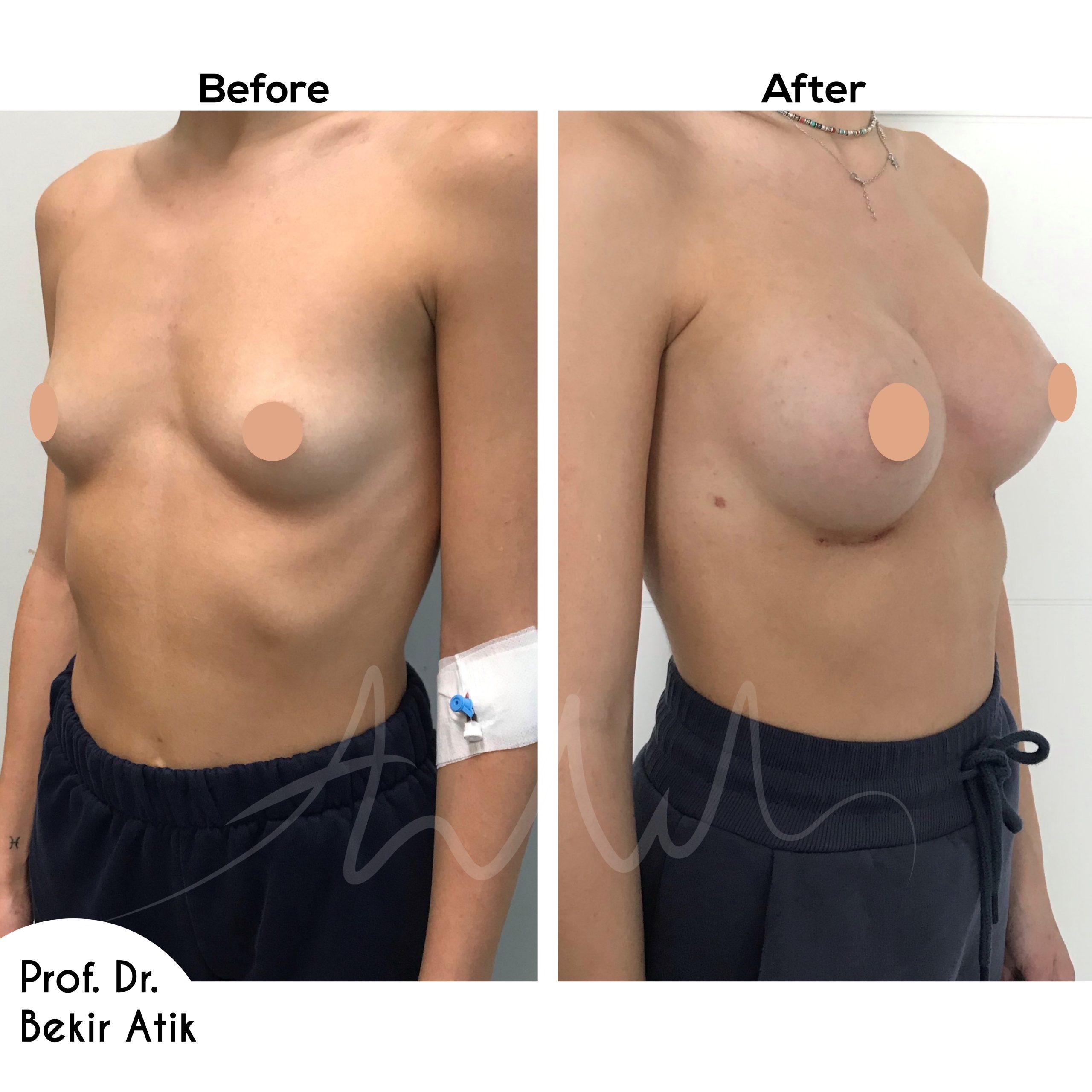 breast-enlargement-3-2