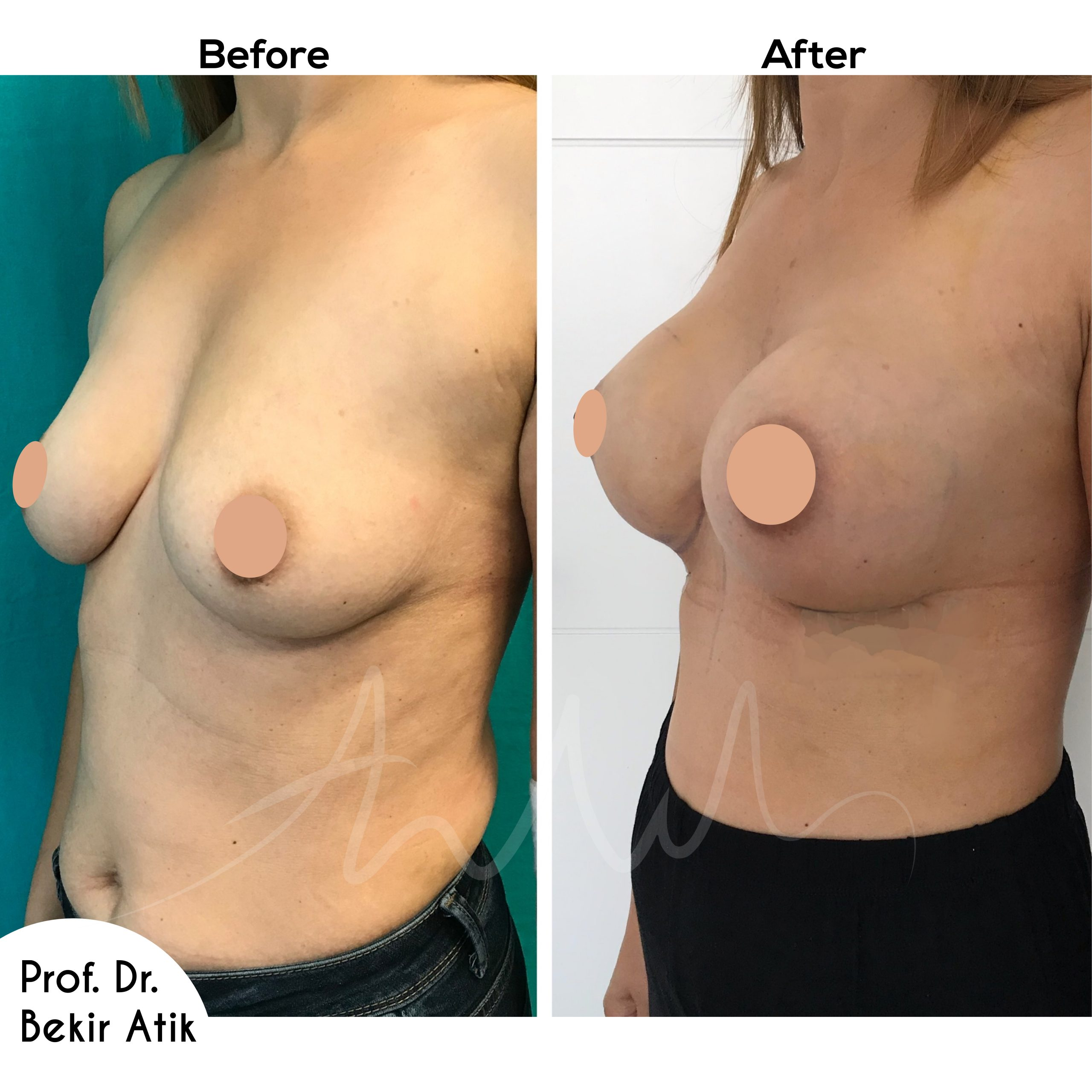 breast-enlargement-4