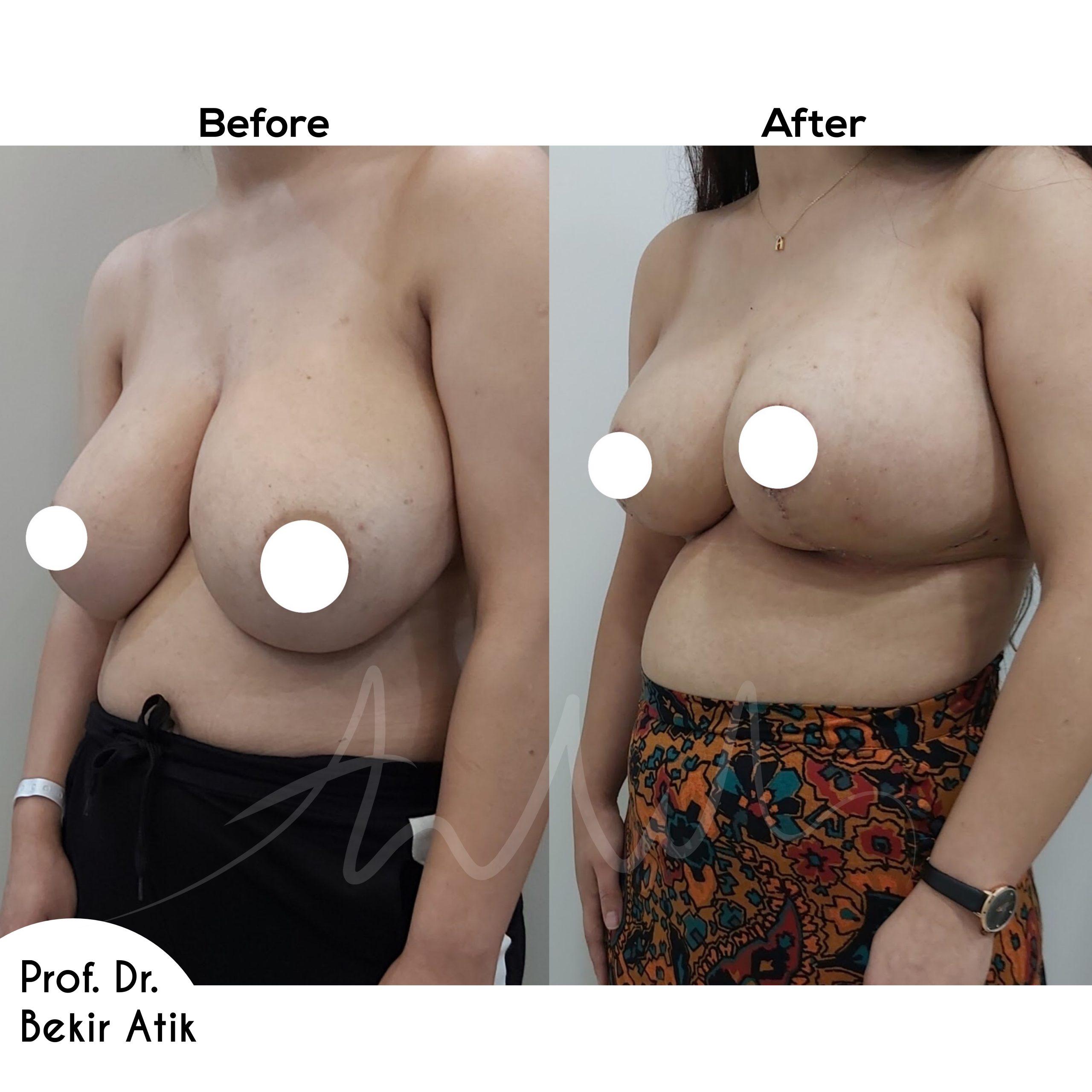 breast-lift-10
