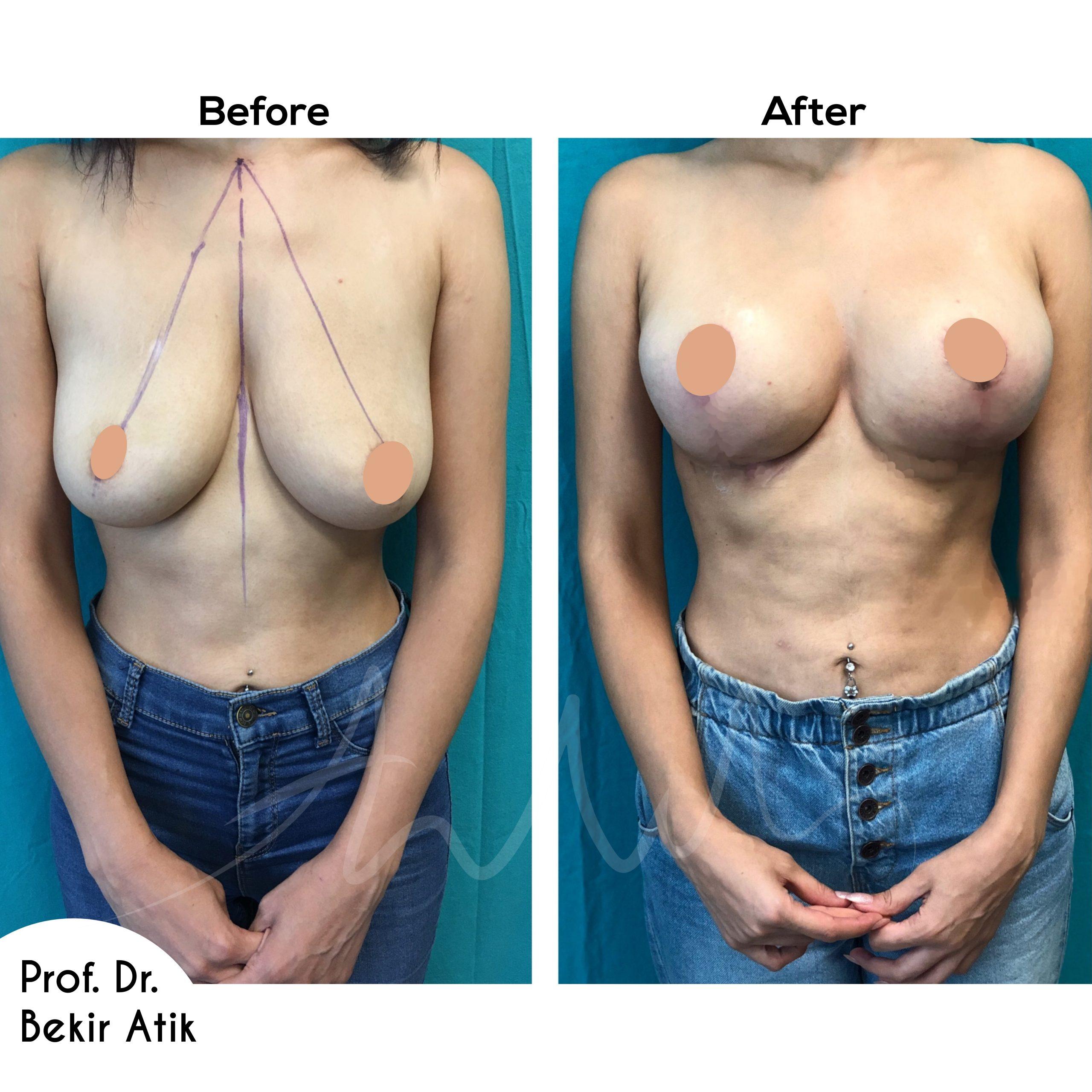 breast-lift-11