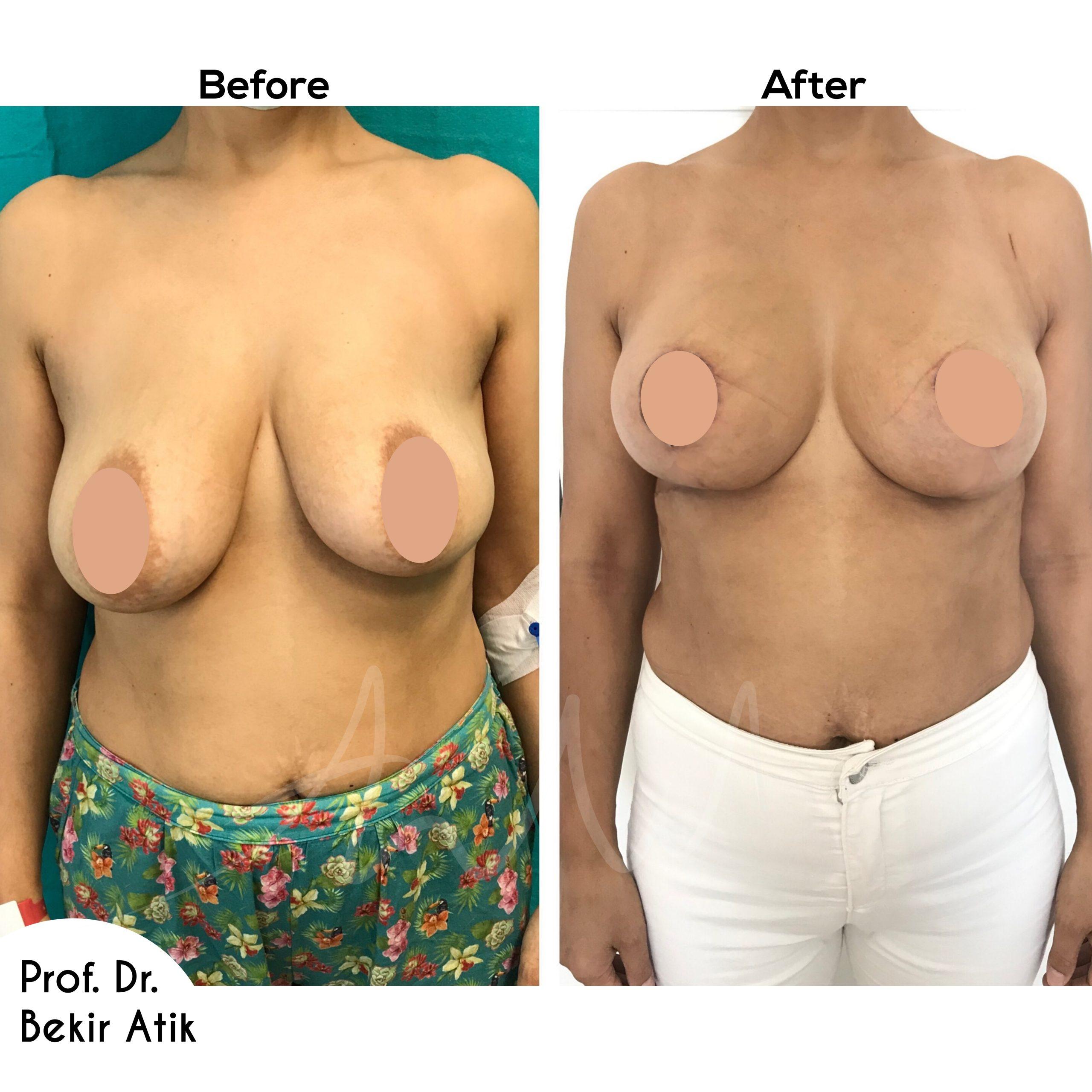 breast-lift-12