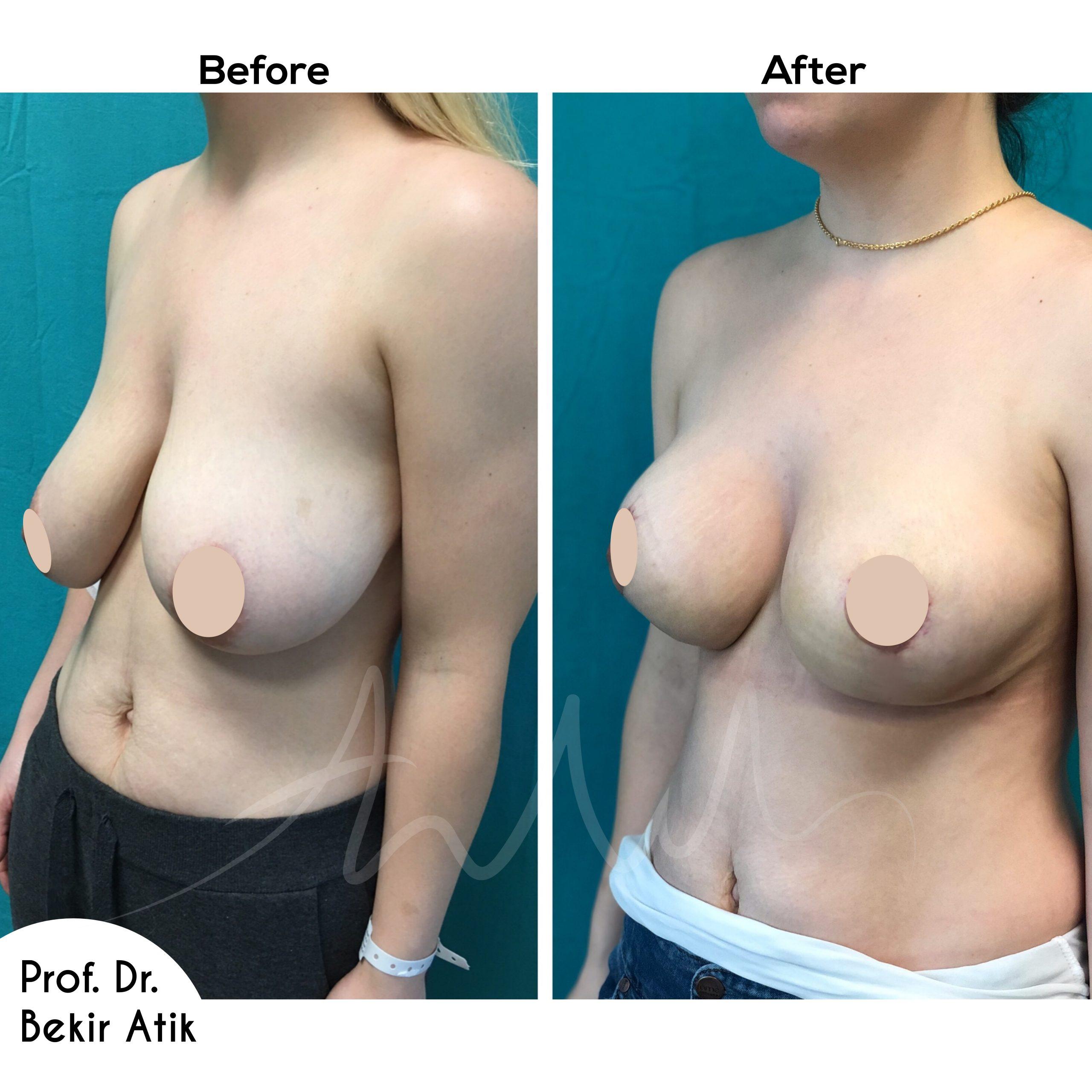 breast-lift-2