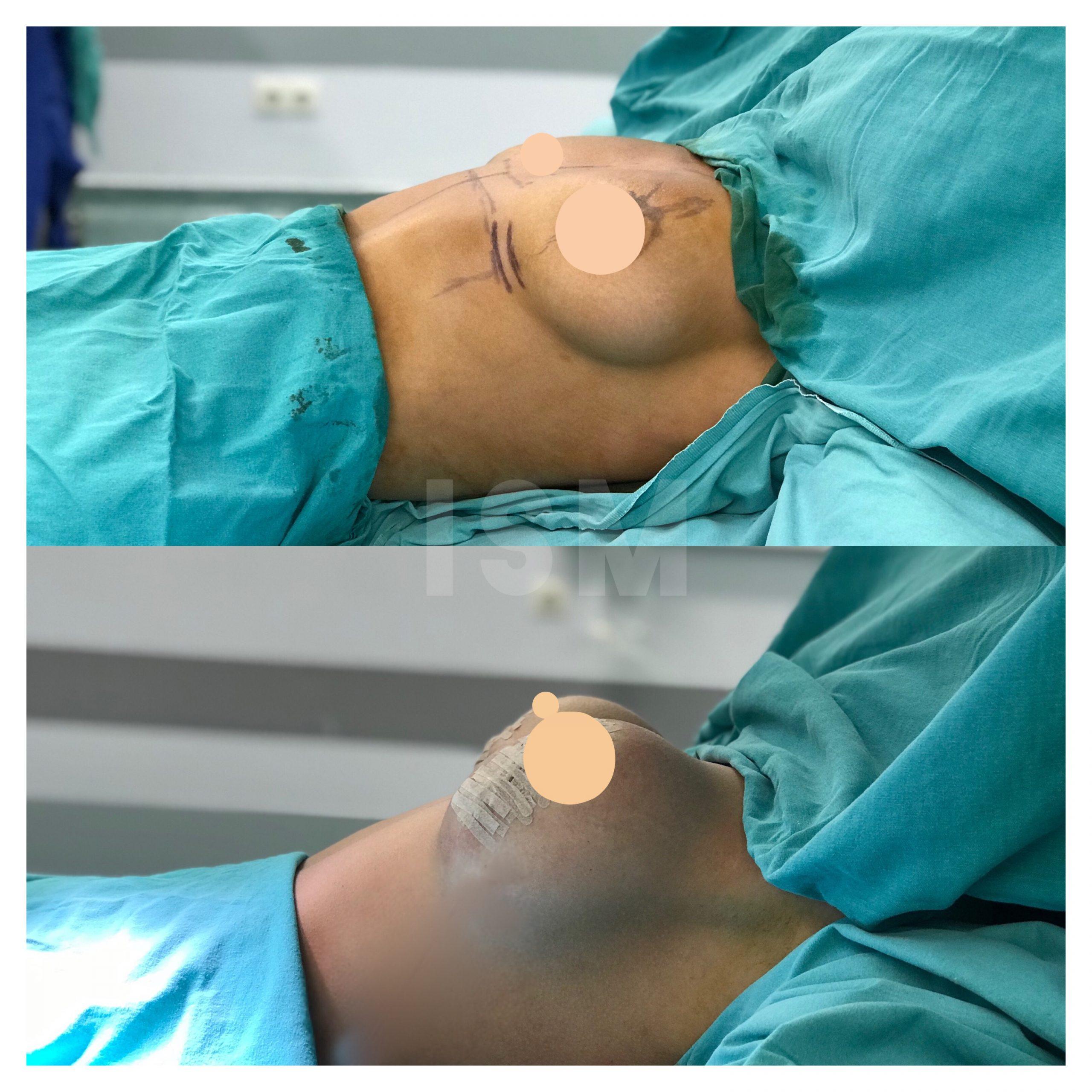 breast-lift-9
