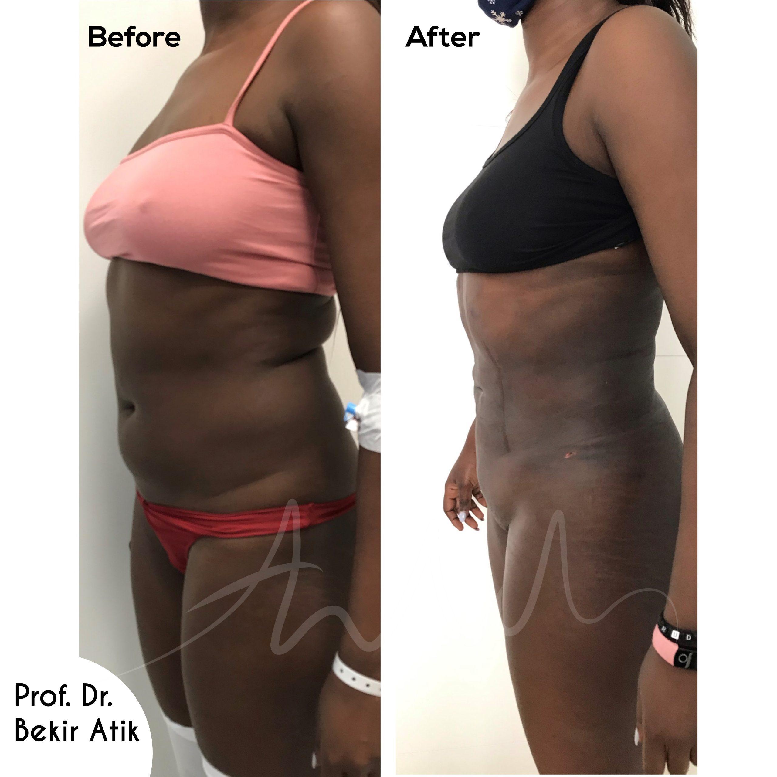 liposuction-3