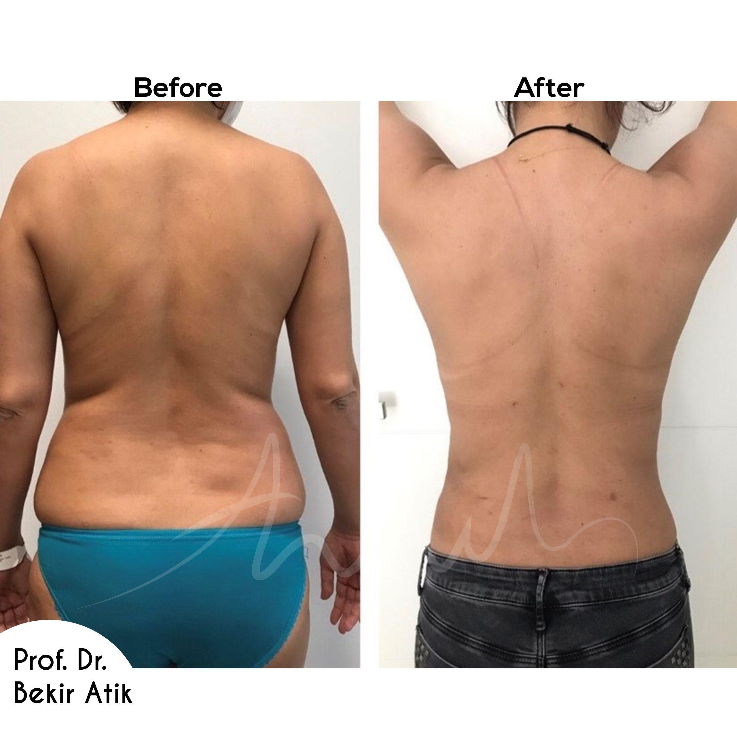 liposuction-6