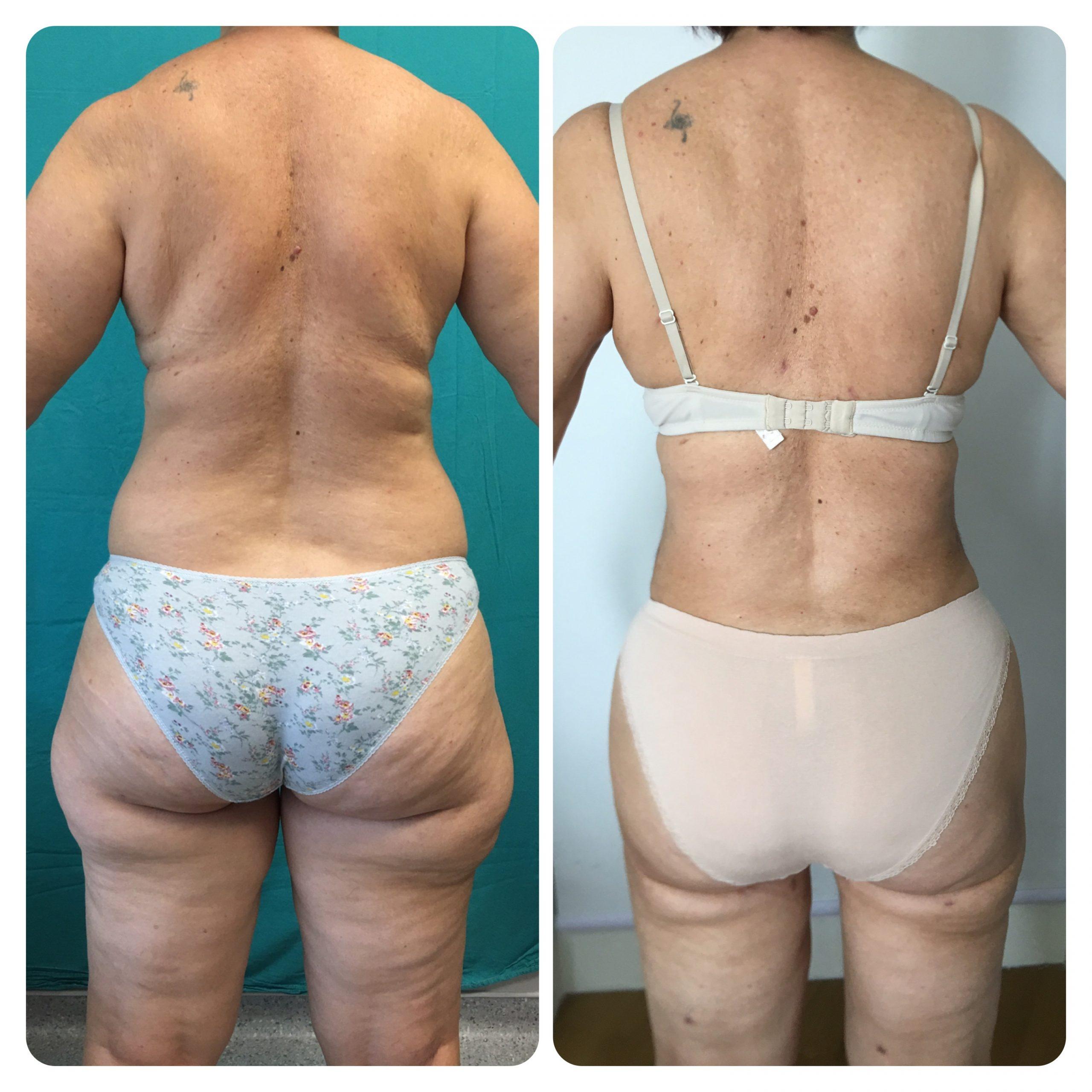 liposuction-7