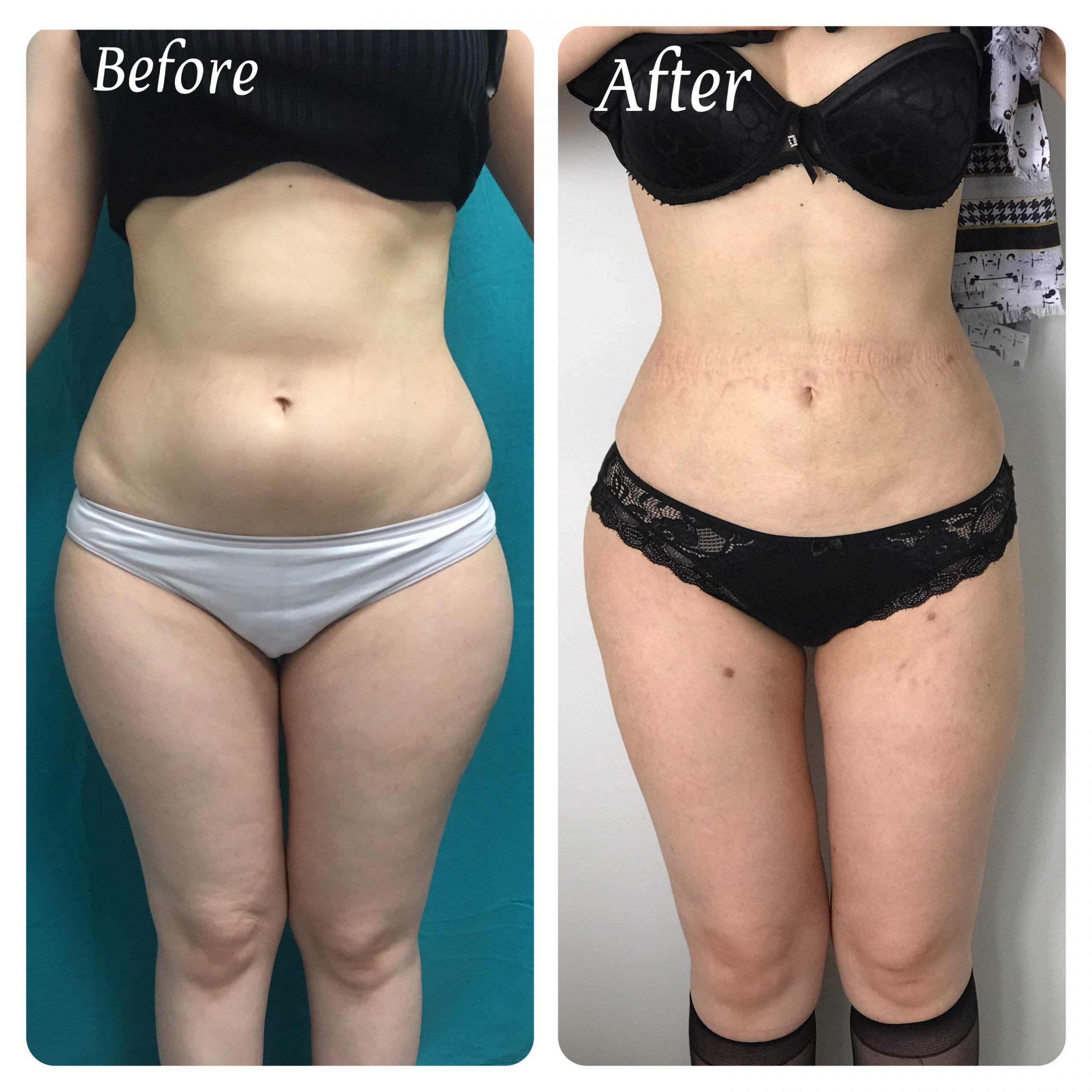 liposuction-8