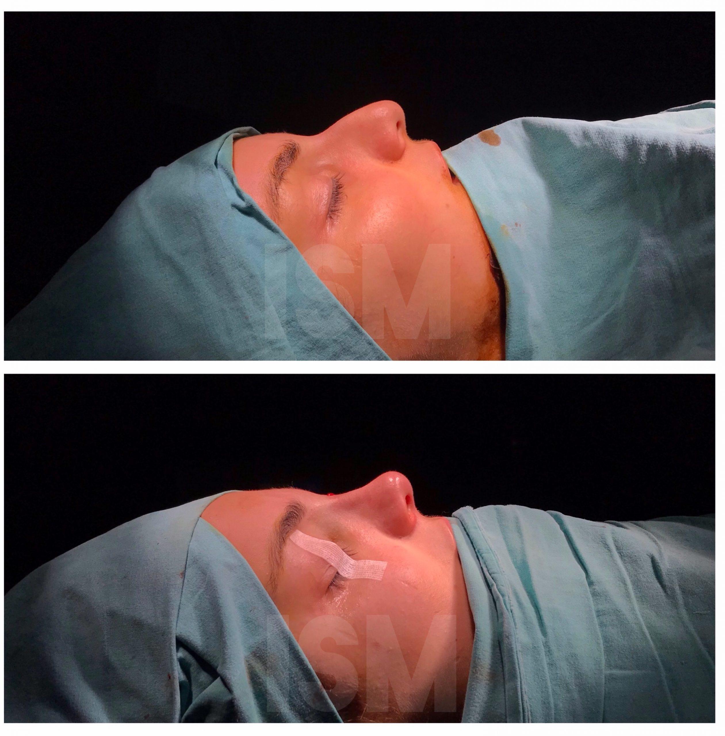rhinoplasty-4