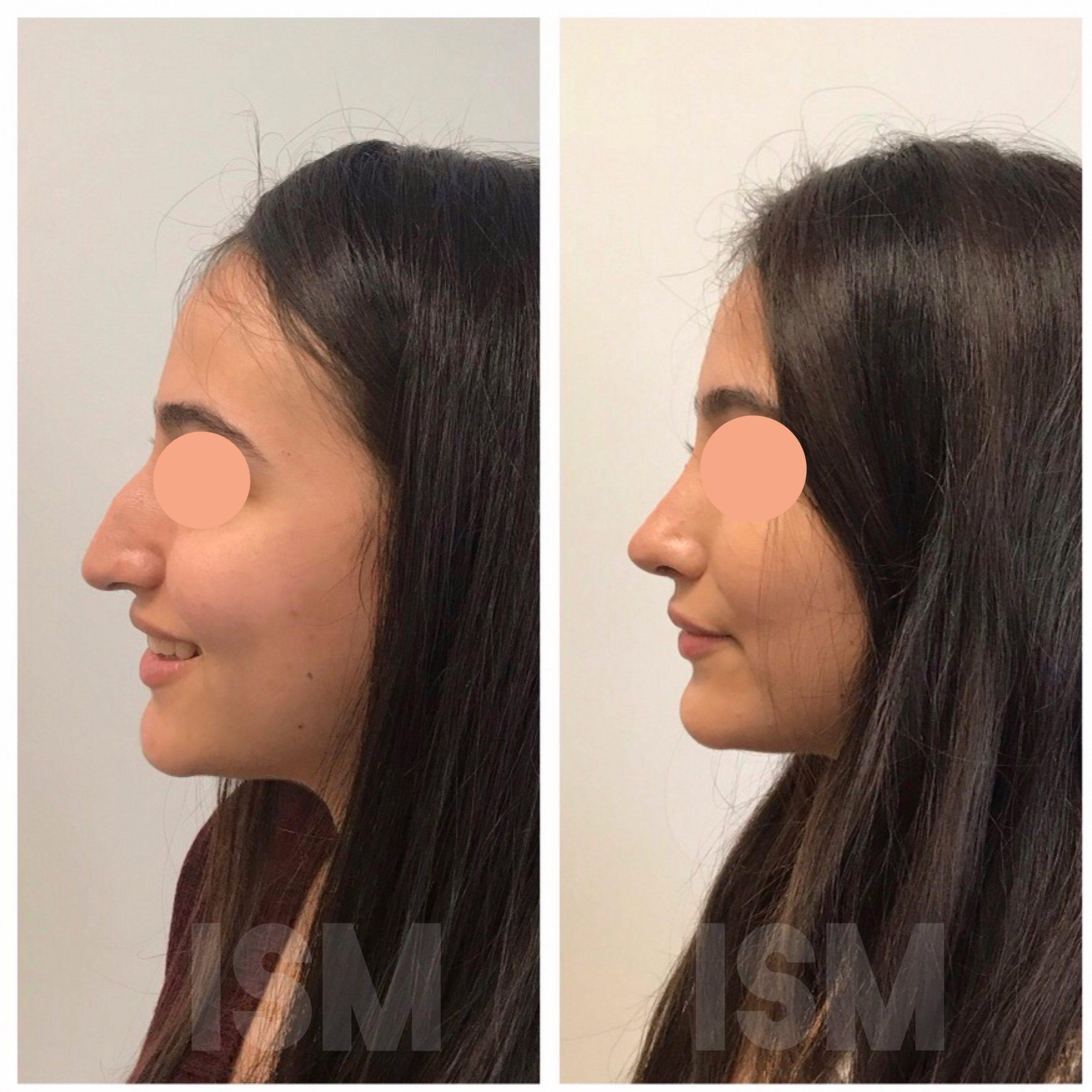 rhinoplasty-5